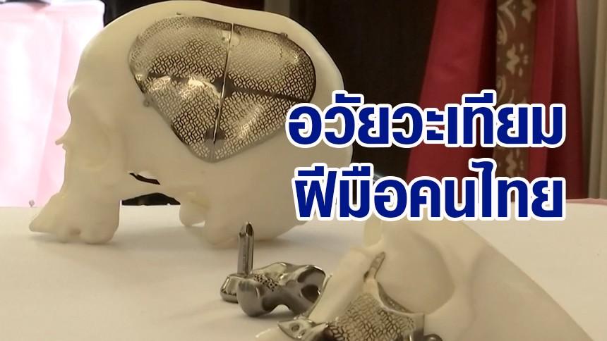 จุฬาฯพัฒนาอวัยวะเทียมให้เหมาะสมกับคนไทย ลดการนำเข้าจากต่างประเทศ
