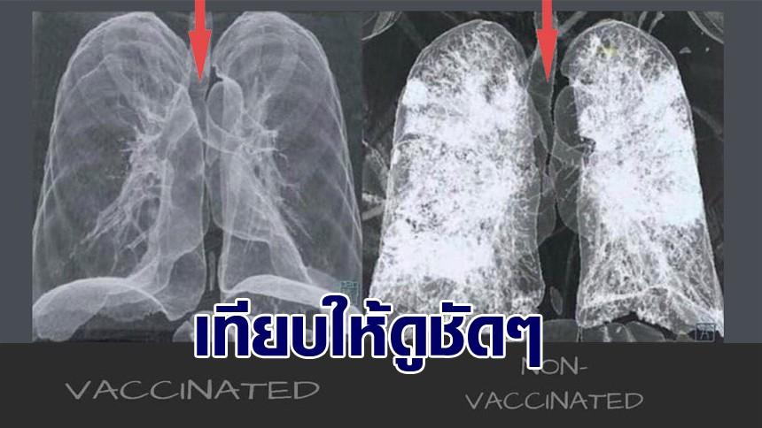 เปิดภาพเทียบให้ดูชัดๆ ปอดผู้ป่วยโควิด-19 ฉีดวัคซีน-ไม่ฉีดวัคซีน